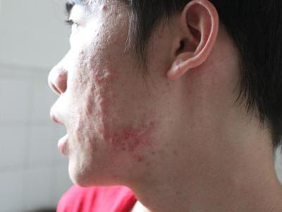 中医治疗痤疮的特效方都有什么