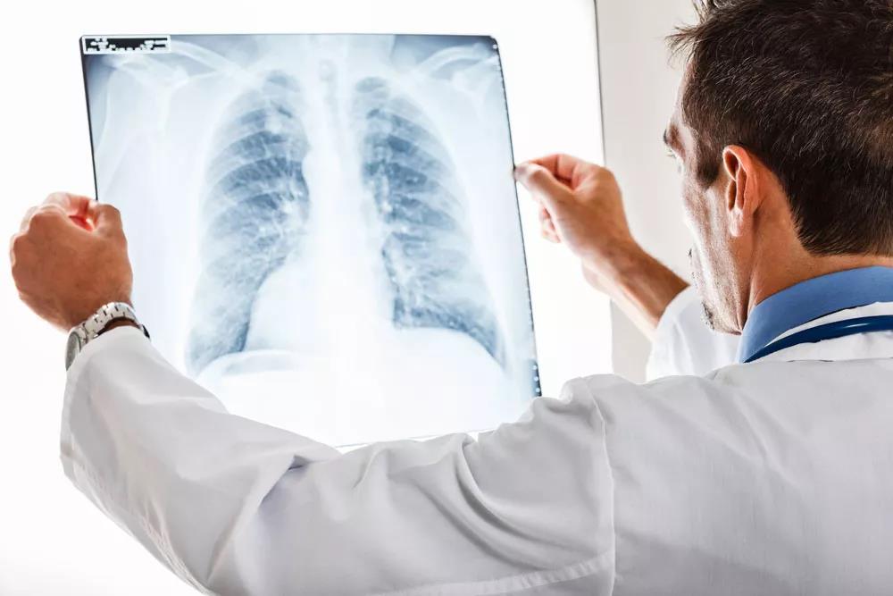 哮喘 气管炎 慢阻肺 肺气肿 肺心病 反复发作? 试试这个方法!