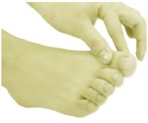 拇食指钳压法
