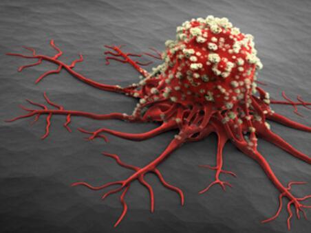 缺1种营养容易患癌 现在开始多维生素C食物