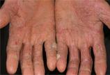 四肢湿疹症状图